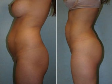 Butt Augmentation Photos