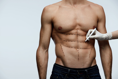 young man fit torso with surgical lines on his body before beauty operation-img-blog