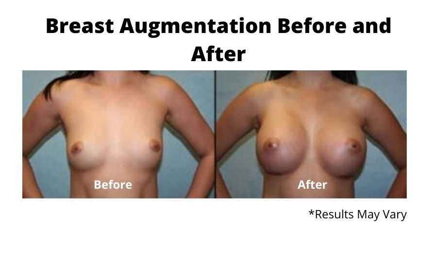 Before and after image showing the results of a breast augmentation performed in Fresno, CA.