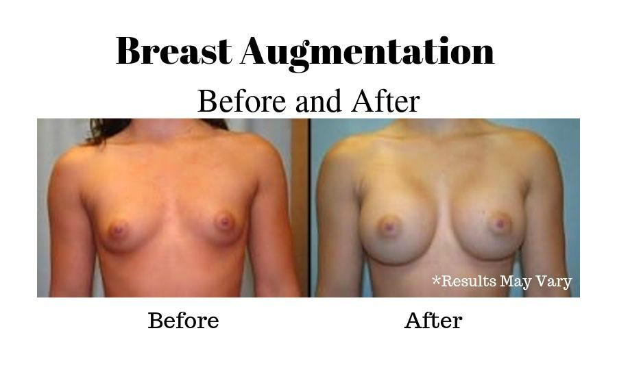 Before and after image showing results of a breast augmentation performed in Fresno, CA.