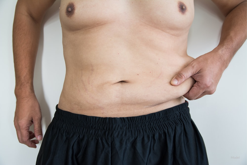 How Does A Tummy Tuck Differ For A Man Mark A Chin Md