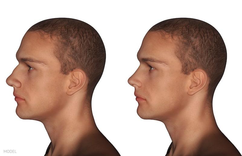 Computer simulation of three-dimensional nose job model.